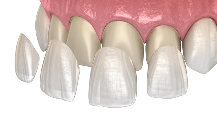 Río Ega Clínica Dental Estella estetica dental