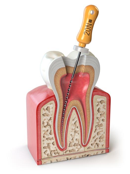 Río Ega Clínica Dental Estella endodoncia
