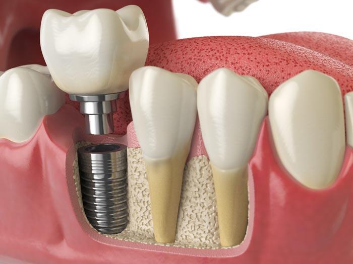 Río Ega Clínica Dental Estella implantologia