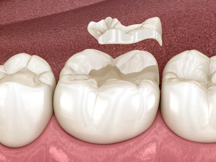 Río Ega Clínica Dental Estella odontología conservadora