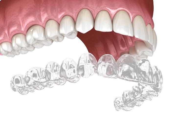 Río Ega Clínica Dental Estella ortodoncia invisible