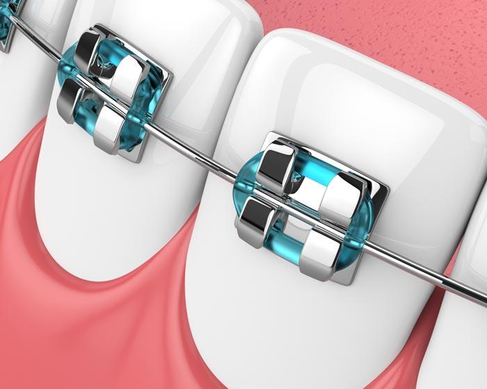Río Ega Clínica Dental Estella ortodoncia