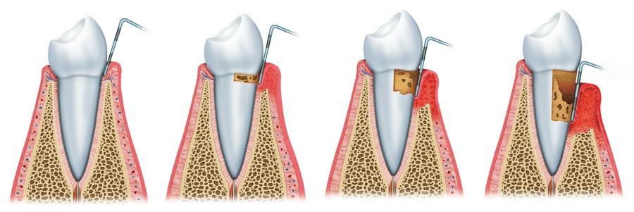 Río Ega Clínica Dental Estella periodoncia