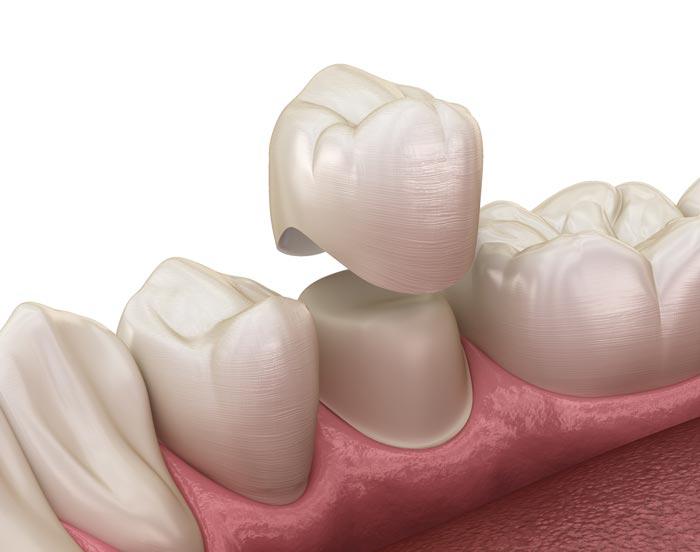 Río Ega Clínica Dental Estella protesis sobre diente