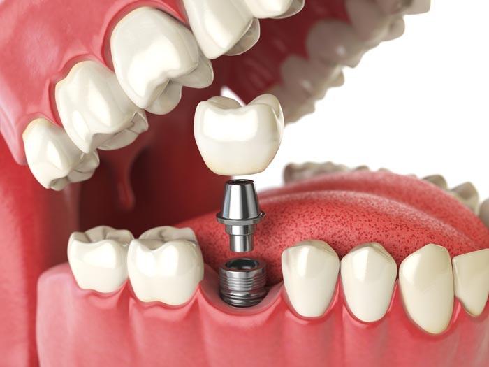 Río Ega Clínica Dental Estella protesis sobre implantes